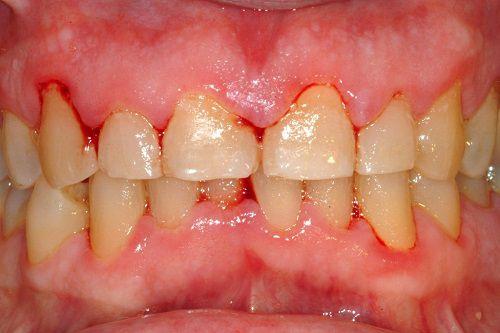 Image result for Nướu răng hay bị chảy máu là biểu hiện của bệnh viêm nướu răng