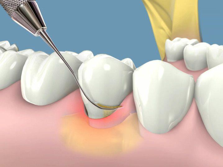 Lấy cao răng có hại gì không tới răng miệng 1