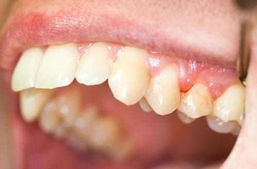 chữa chảy máu chân răng hôi miệng