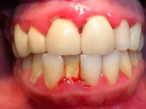 Hay bị chảy máu chân răng do chăm sóc vệ sinh răng không đúng cách
