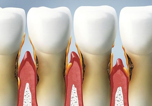 Những thông tin về bệnh viêm chân răng và cách điều trị 1