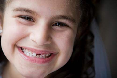 Trẻ em bị chảy máu chân răng cha mẹ nên điều trị cho bé thế nào? 3