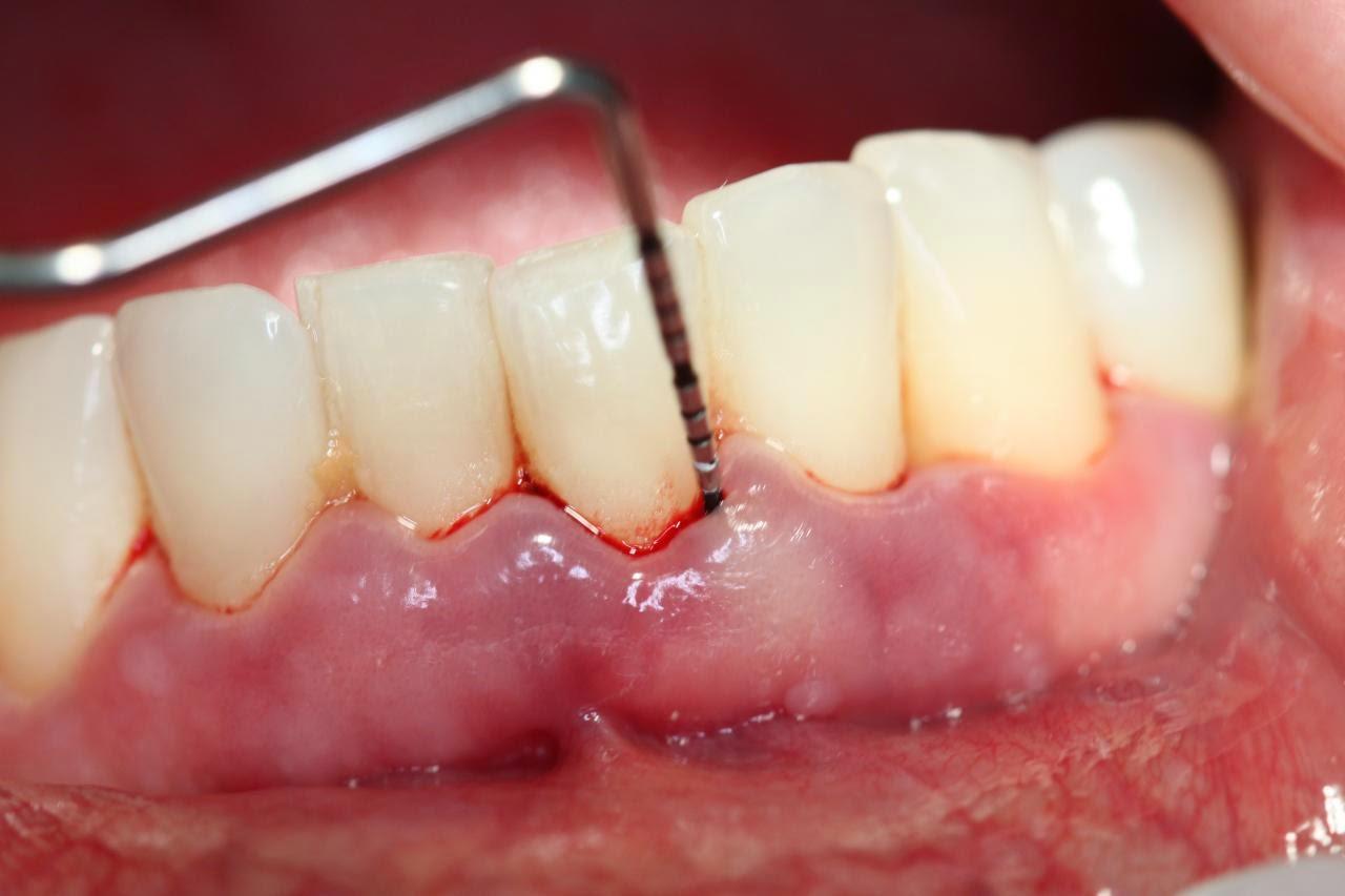 HIện tượng tự nhiên chảy máu chân răng là bị làm sao?【Giải Đáp】1