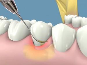 Kết quả hình ảnh cho vôi răng