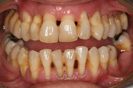 Tại sao nướu bị tụt, sưng to đau nhức và để lộ chân răng? 1