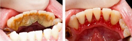 Lấy cao răng bằng máy siêu âm Cavitron BP 5