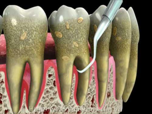 Những tác hại khôn lường của vôi răng có thể bạn chưa biết 2
