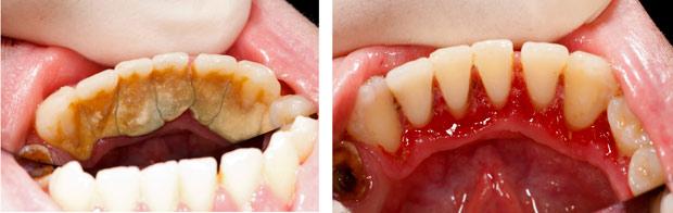 Vì sao có hiện tượng ê buốt khi lấy cao răng?