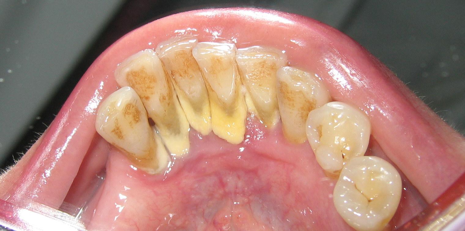 Tất cả các thông tin cần thiết về vôi răng và cạo vôi răng là gì? 1