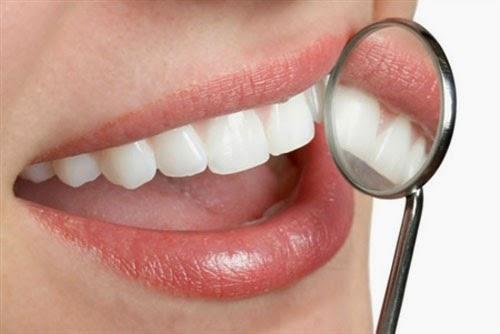Image result for Lấy cao răng loại bỏ đi vi khuẩn – nguyên nhân dẫn tới hiện tượng chảy máu chân răng