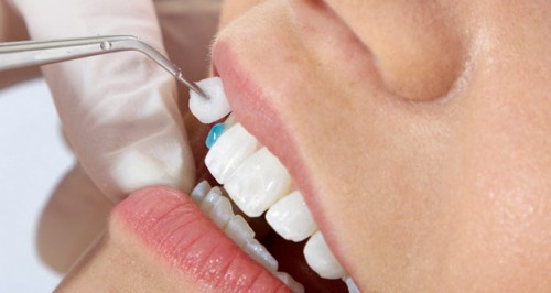 Kết quả hình ảnh cho Trường hợp nào thì tôi mới nên đi bọc răng sứ