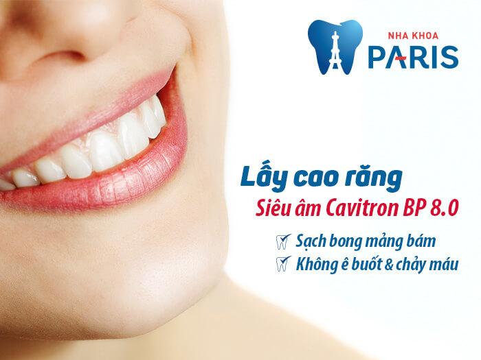 Lấy cao răng định kỳ với công nghệ siêu âm Cavitron