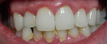 tác hại của vôi răng