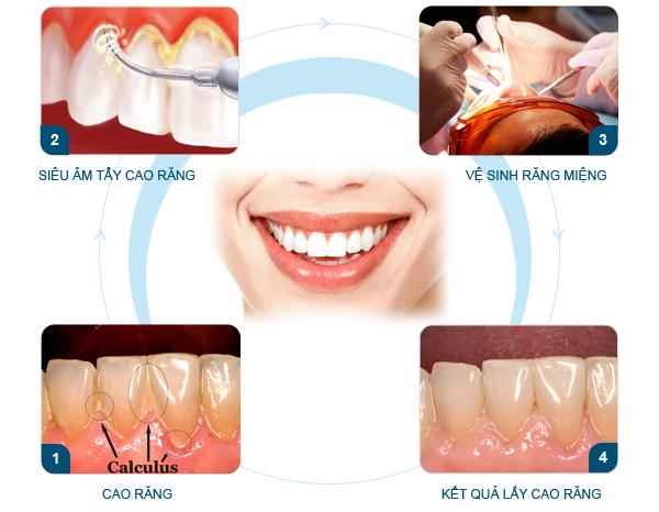 4 lợi ích quan trọng của lấy cao răng định kỳ bạn nên biết 6