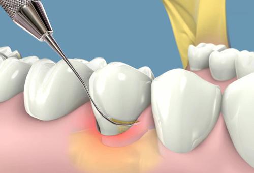 Cách trị hôi miệng vĩnh viễn bằng phương pháp lấy cao răng
