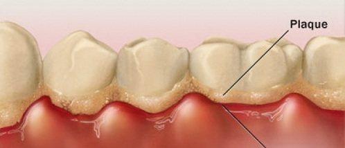 Cao răng quá nhiều có cần quan tâm?