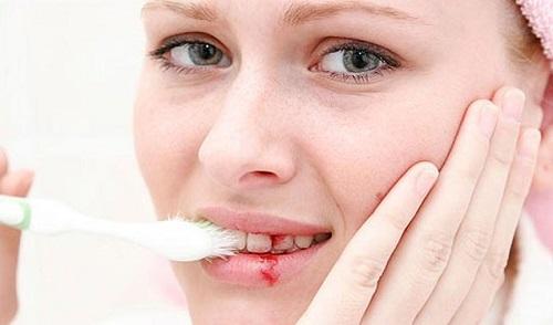 HOT cách chữa chảy máu chân răng HIỆU QUẢ 100% ngay tại nhà 2