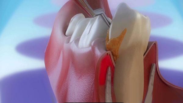 Cách chữa sưng mộng răng nhanh mà hiệu quả ngay TẠI NHÀ 1