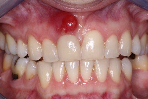 Triệu chứng viêm chân răng và những điều bạn cần phải biết 1