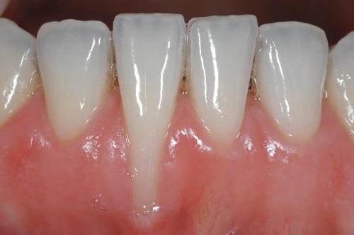 Hàm răng bị tụt lợi có chữa được không? Giải đáp từ chuyên gia 1