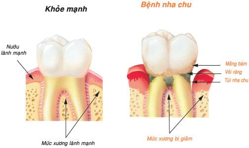 Cao răng màu đen có ảnh hưởng gì không? Làm sao để hết