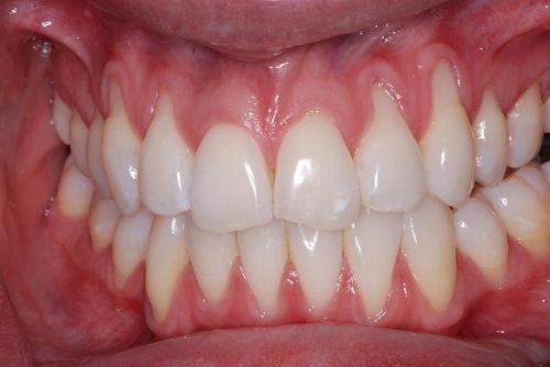 Hàm răng bị tụt lợi có chữa được không? Giải đáp từ chuyên gia 2