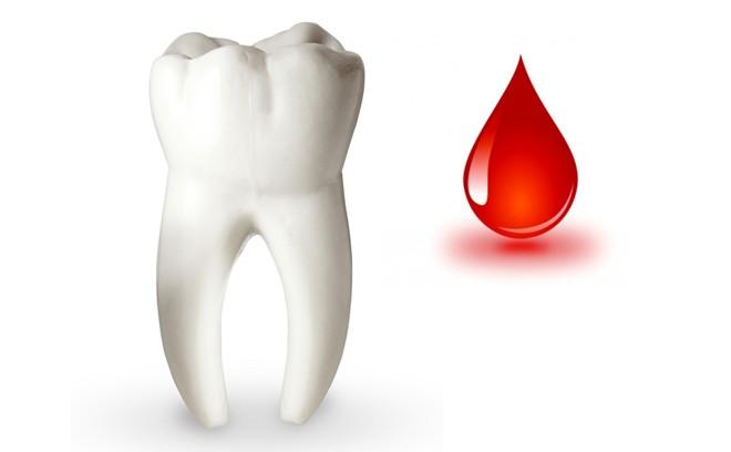 hiện tượng chảy máu chân răng
