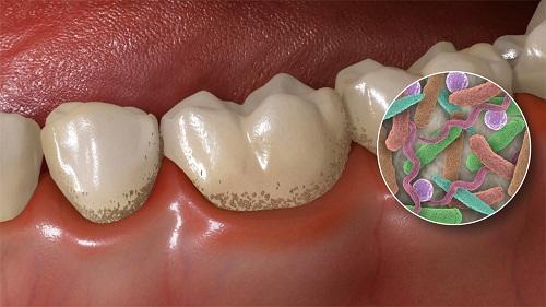 Lấy cao răng có an toàn không? Nha sĩ giải đáp