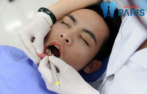 Lấy cao răng có hại gì không? Kỹ thuật lấy cao răng an toàn 2