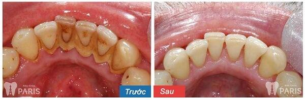 Lấy cao răng bằng máy siêu âm Cavitron BP 6