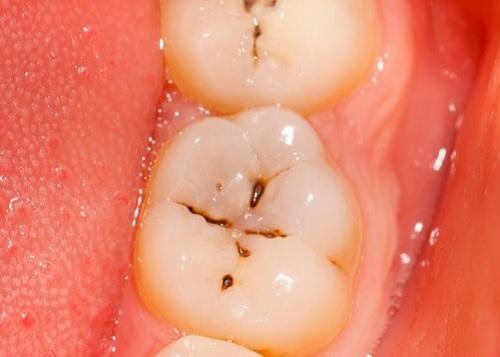 Ê buốt sau khi lấy cao răng - Nguyên nhân & cách khắc phục 100% 7
