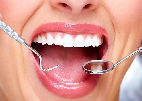 Lấy cao răng có an toàn không? Giải đáp từ chuyên gia 3