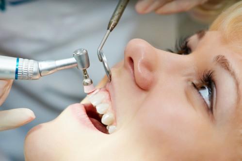 Nguyên nhân & cách khắc phục ê buốt sau khi cạo vôi răng 2