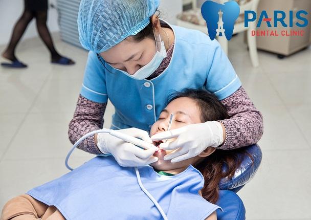 Lấy cao răng hết bao nhiêu tiền? Giá lấy cao răng ở Hà Nội & Tp.HCM 2