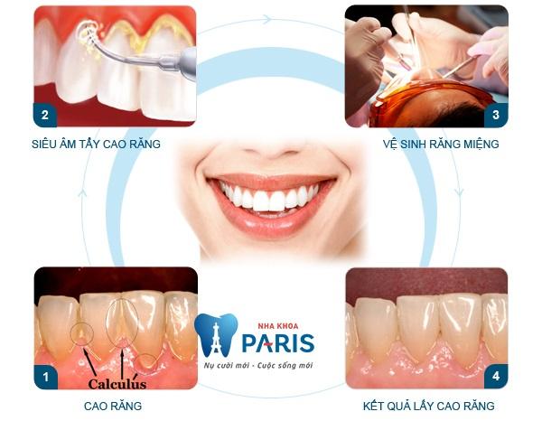 Bộ dụng cụ lấy cao răng tại nhà có thật sự ❝ĐẢM BẢO❞ an toàn? 2