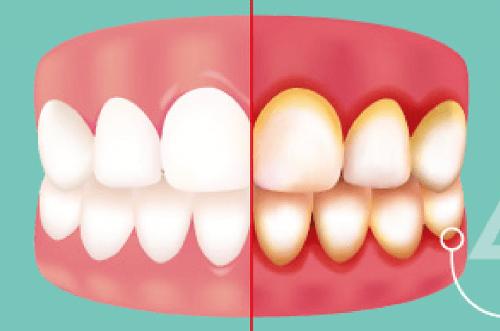 Cách điều trị đặc biệt hiệu quả cho trẻ bị viêm chân răng Nhanh khỏi 3