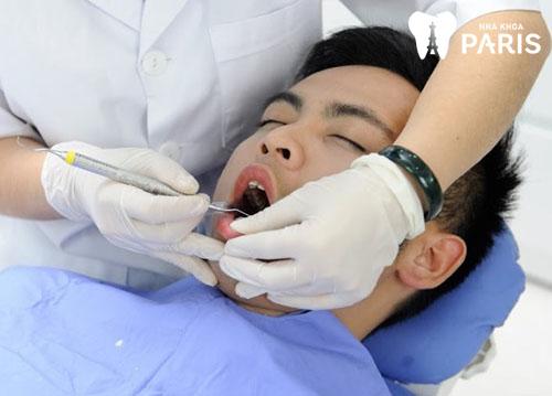 Lấy cao răng mất bao nhiêu thời gian thì hoàn tất?【BS Tư Vấn】 1