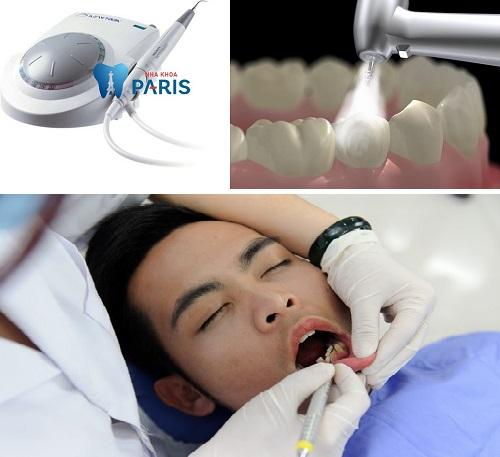 Lấy cao răng giá bao nhiêu tiền tại Sài Gòn 2