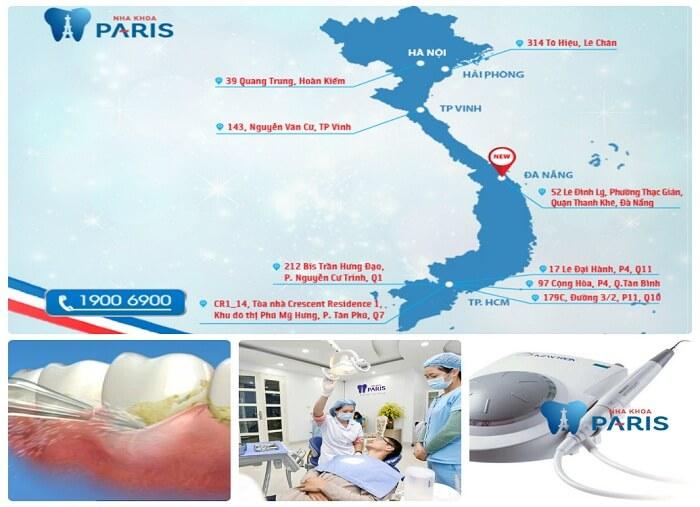 Quy trình cạo vôi răng bằng công nghệ Cavitron BP 8.0 tại Paris 3