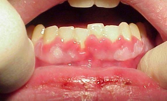 Bạn cần biết: Viêm nướu răng là gì và cách khắc phục?