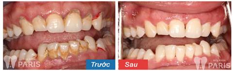 Nguy cơ tiềm ẩn từ việc lấy cao răng bị ê buốt 4
