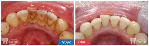 Lấy cao răng