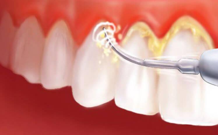 Các phương pháp cạo vôi răng phổ biến và tự nhiên nhất hiện nay 3