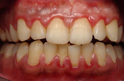 Nguyên nhân và cách điều trị TRIỆT ĐỂ viêm lợi răng cửa 1