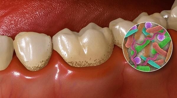 Lấy cao răng chữa viêm lợi HIỆU QUẢ đến mức nào? 2