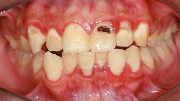 """Lấy cao răng bằng vỏ chuối liệu """"Có Hiệu Quả"""" như bạn nghĩ? 6"""