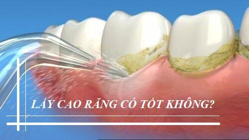 Lấy cao răng có tốt không? Liệu có gây ảnh hưởng tới răng và nướu? 2