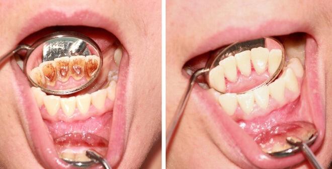 Giải đáp chi tiết về lợi và hại của việc lấy cao răng 1