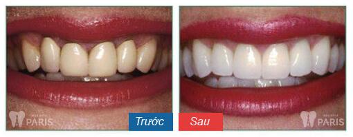 Răng bị ố đen – Nguyên nhân và cách khắc phục hiệu quả 5