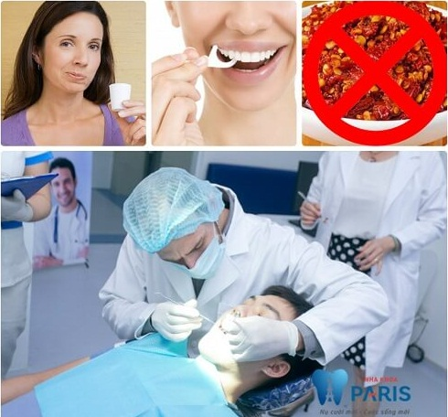 Triệu chứng viêm lợi trùm & cách điều trị 3 trường hợp viêm nhiễm 6